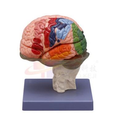医模 大脑模型(16部分)