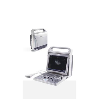 蓝韵 CU60全数字化超声诊断系统