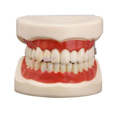 医模 正常大小口腔护理操作模型