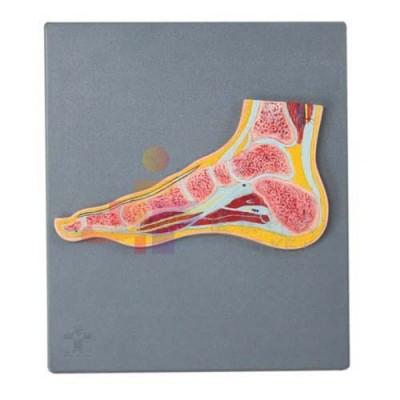 医模 足关节剖面模型