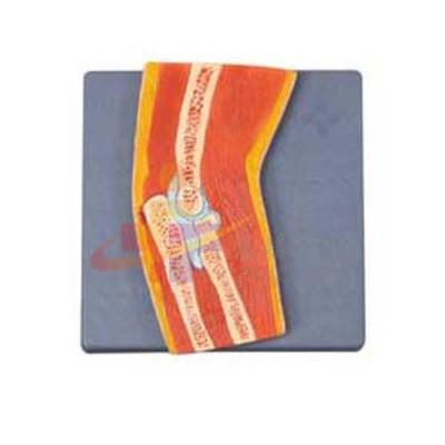 医模 肘关节剖面模型