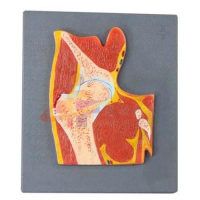 医模 髋关节剖面模型