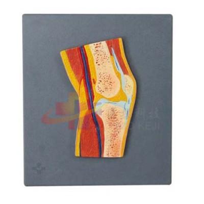 医模 膝关节剖面模型