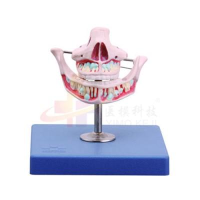 医模 乳牙模型