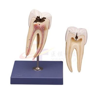 医模 磨牙模型(含龋齿)