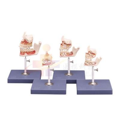 医模 牙齿发育模型