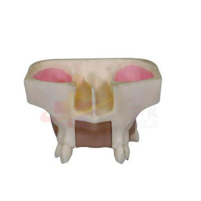 医模 种植牙操作模型