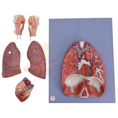 医模 心、肺、膈肌及喉部模型