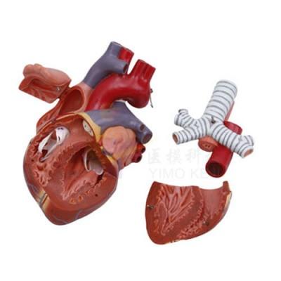 医模 心脏(1.5倍)模型