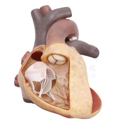 医模 完全性大动脉错位模型