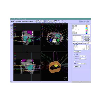 东软 放射治疗计划系统
