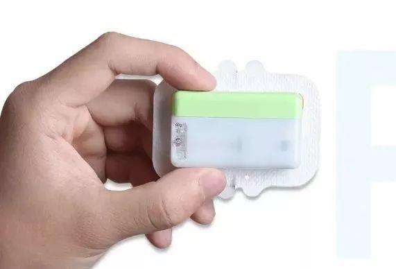 用贴片式人工胰腺产品挺进海外高端医疗器械市场,「移宇科技」获2亿元C轮融资