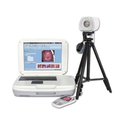 益柯达 YKD-3004高清LED数码电子阴道镜代理