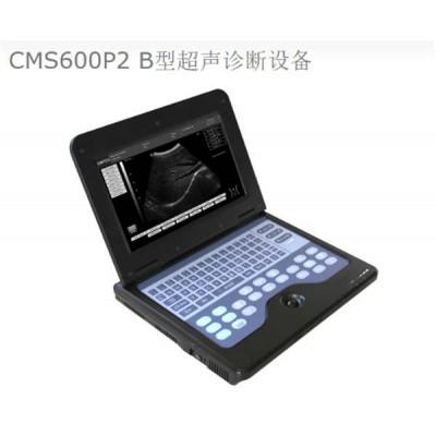亿昌欣 CMS600P2记本式B型超声诊断设备 全数字手提式诊断仪厂家