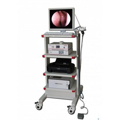卡尔美斯耳鼻喉内窥镜系统 耳鼻喉内窥镜影像检查系统 耳鼻喉内窥镜