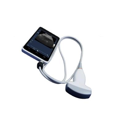 手持式超声视诊器 鼎坤健康手持式超声视诊器 手持式超声视诊器价格