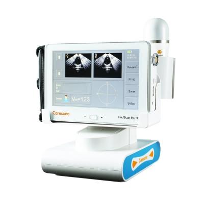 膀胱容量测定仪 汉德膀胱容量测定仪 HD3膀胱容量测定仪