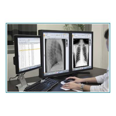 放射医学影像工作站 永安科技放射类工作站 放射CT工作站配置