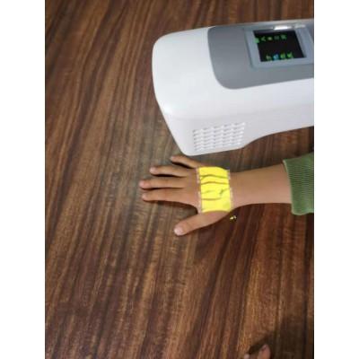 血管显像仪 可视静脉穿刺仪 儿童输液用血管显示仪 佳音整形美容