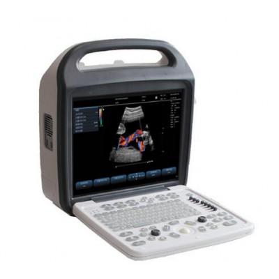 欧维锐特B超机 高清便携测孕仪 便携式全数字彩色多普勒超声诊断