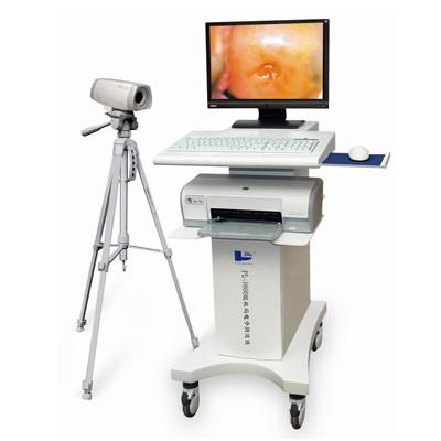PL-9800推车式电子阴道镜 派尔妇科阴道镜数码电子阴道镜