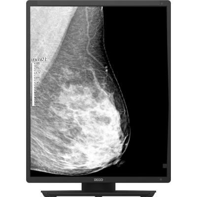 希科医疗诊断显示器 诊断显示器 M521D专业诊断显示器